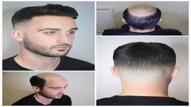 شركة healthy hair club تفتتح فرعها في الاردن وتقدم افضل انواع البواريك الطبية التجميلية للجمهور
